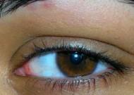 Augenkrankheiten im Alter