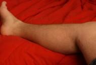 Chronische Schmerzen im Bein
